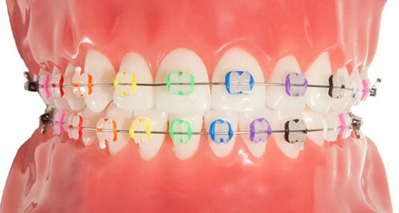 Professional's Guide to Choosing Braces Brisbane